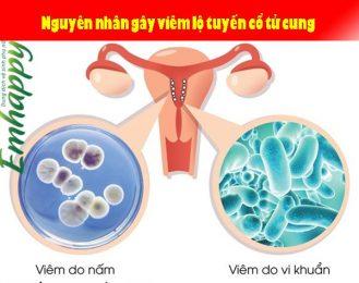 Nguyên nhân gây viêm lộ tuyến cổ tử cung và phác đồ điều trị